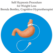 Virtual Gastric Band Hypnotherapy for Weight Loss