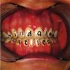 Vindaloo - Fat Les mp3