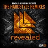 Hardwell - Dare You