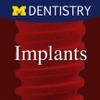 Implants - Two teeth