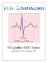 ECGpedias ECG Basics