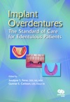 Implant Overdentures The Standard Of Care For Edentulous Patients