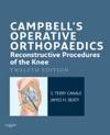 Campbells Operative Orthopaedics Reconstructive Procedures Of The Knee E-Book