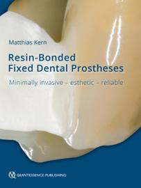 Resin-Bonded Fixed Dental Prostheses