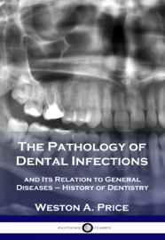 The Pathology of Dental Infections