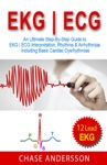 EKG  ECG An Ultimate Step-By-Step Guide To 12-Lead EKG  ECG Interpretation Rhythms  Arrhythmias Including Basic Cardiac Dysrhythmias