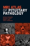 MRI Atlas Of Pituitary Pathology