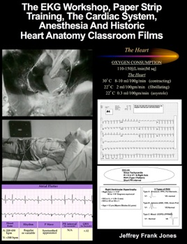 The EKG / ECG Electrocardiogram Workshop, Paper Strip Training, The  Cardiac System, Anesthesia and Historic Heart Anatomy Classroom Films