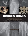 Broken Bones Second Edition