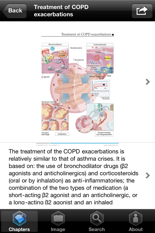 Miniatlas COPD screenshot-4