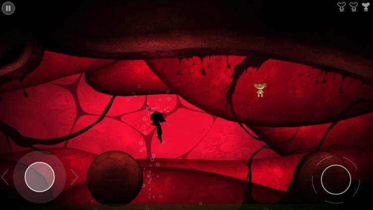 Nightmare: Malaria