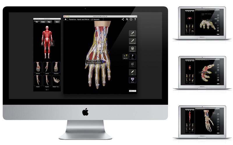 Hand and Wrist Pro III with Animations Screenshot