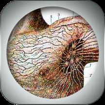 2D Lymphatic Anatomy