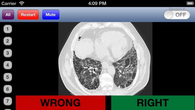 Chest Radiology Flashcards