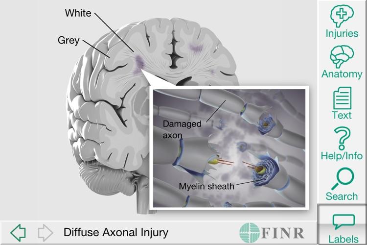 FINR Brain Atlas screenshot-4
