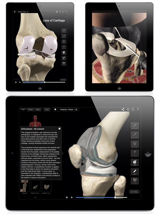 Knee Pro III for iPad