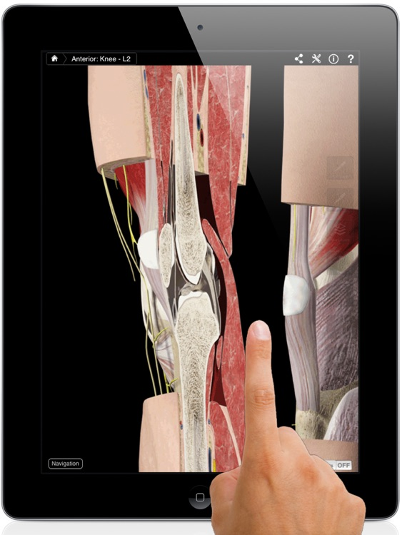 Knee Pro III for iPad screenshot-0