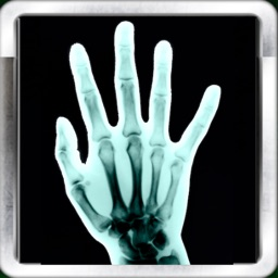 X-Ray Scan +