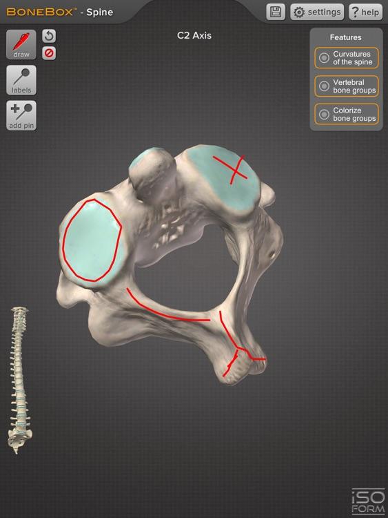 BoneBox™ - Spine Viewer screenshot-3