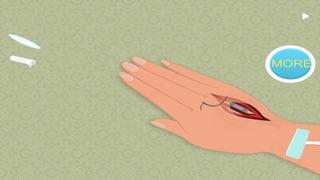 Hand Surgeon : First Aid-0