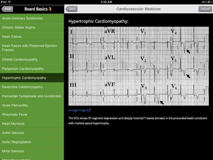 Board Basics 3 screenshot-3