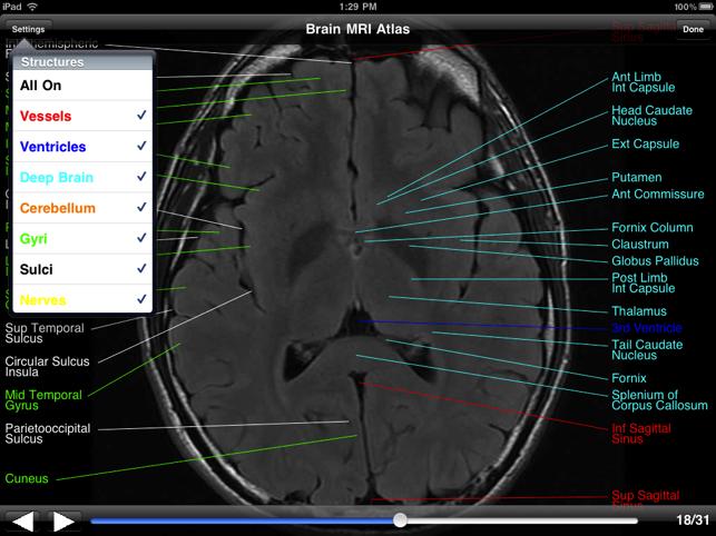 Brain MRI Atlas en App Store