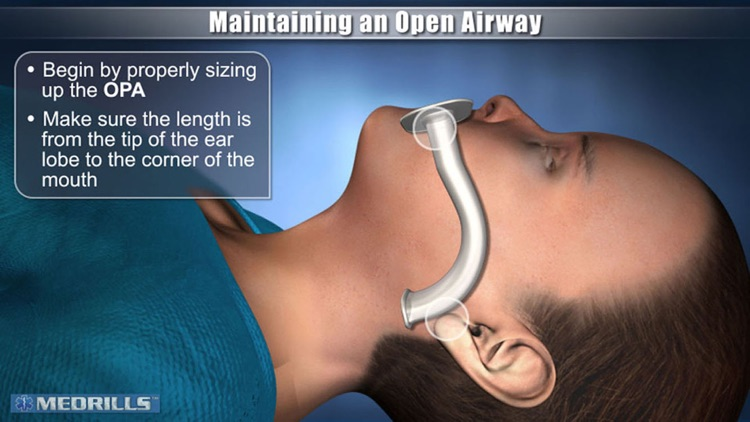 Medrills: Pediatric Airway screenshot-0