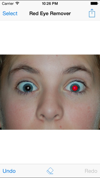 Red Eye Remover