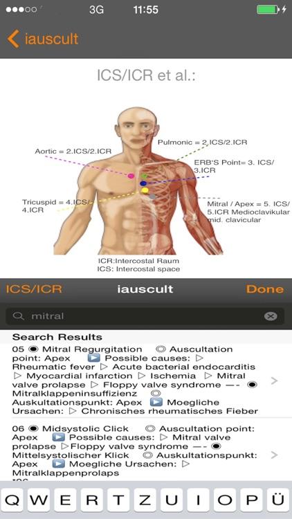 iauscult screenshot-4