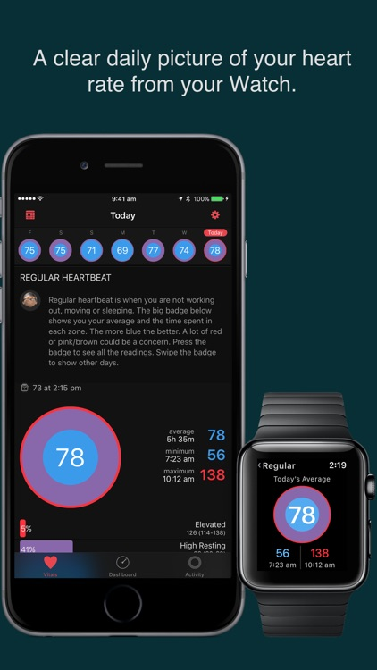 HeartWatch. Heart & Activity Monitor for Watch