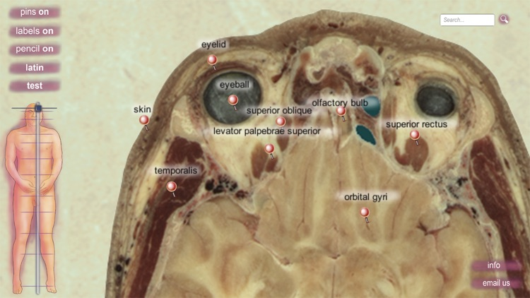 sAnatomy screenshot-2