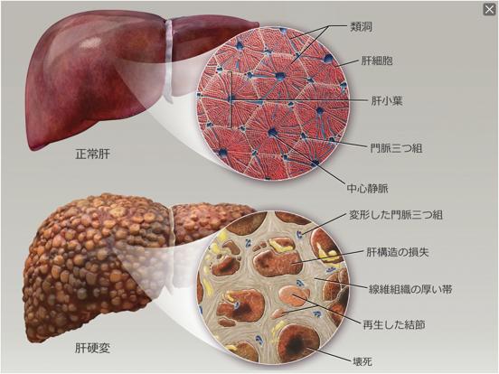 生理学と病理学のおすすめ画像10