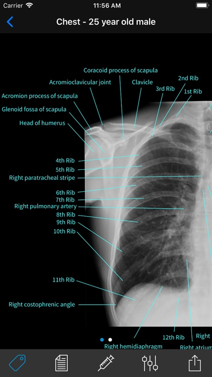 Normal X-Rays and Real Cases