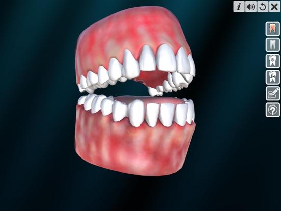 Incredible Human Teeth screenshot 9