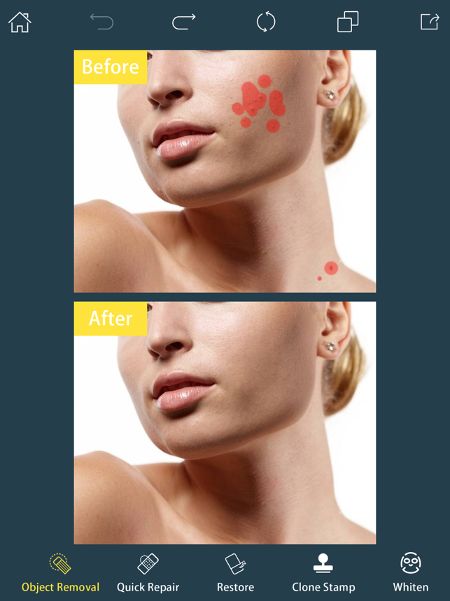 ‎Photo Retouch-Object Removal Screenshot