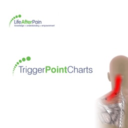 Trigger Point Charts