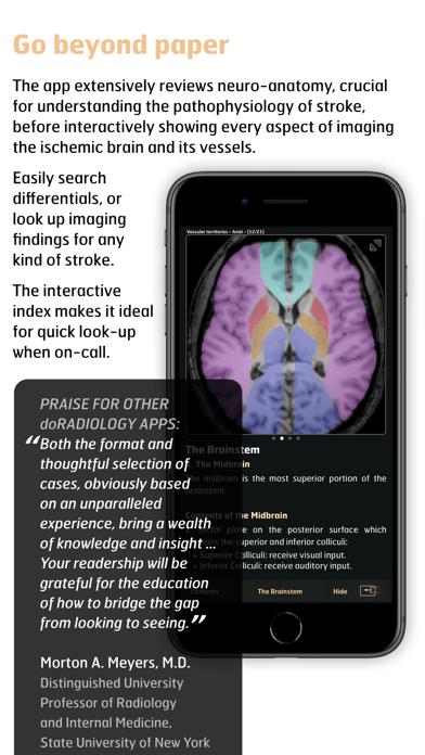 Radiology - Imaging in Stroke screenshot two