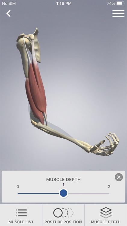 3D Spasticity