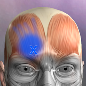 Muscle Trigger Points app