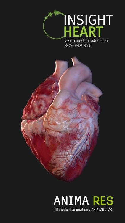 INSIGHT HEART screenshot-6