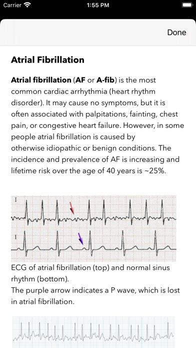 messages.download ECG / EKG software