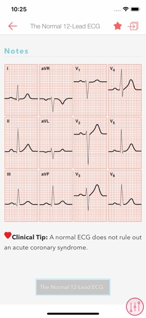 ECG Interpretation (Pocket Tutor)