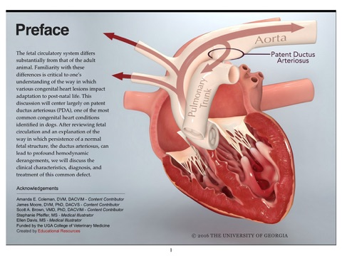 Patent Ductus Arteriosus By Educational Resources University Of