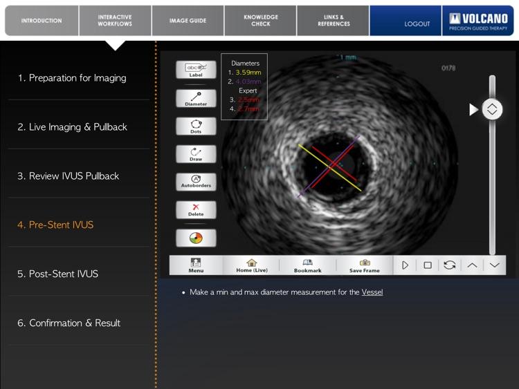 Coronary IVUS Essential Training