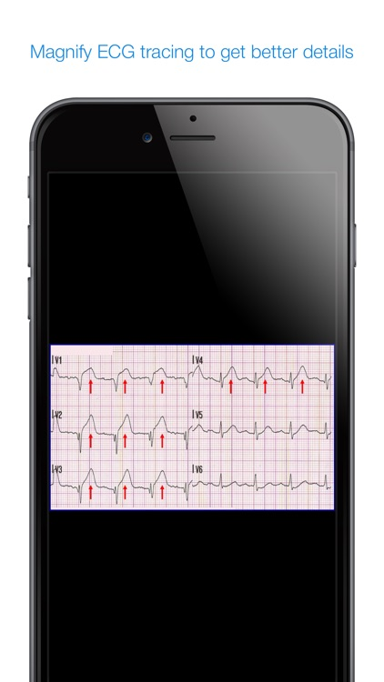 12 Lead ECG Challenge screenshot-3