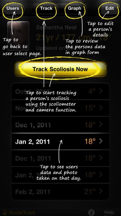 ScolioTrack