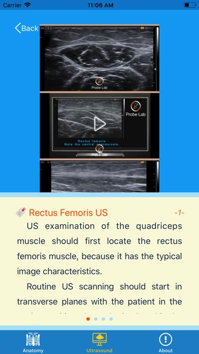 MSK Ultrasound: Thigh screenshot three