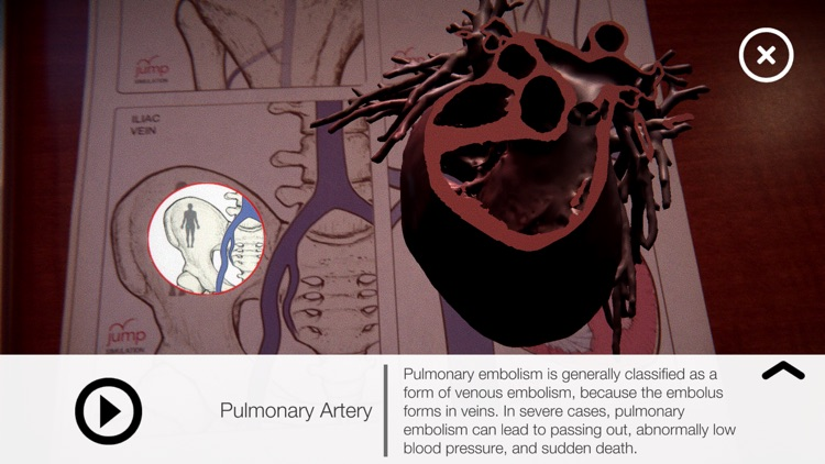AR Anatomy by Jump Simulation by OSF Healthcare System
