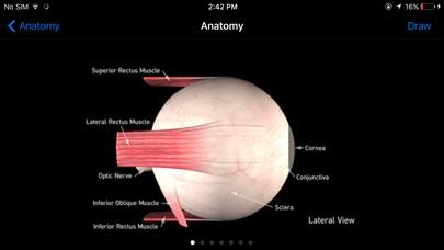 Sight Selector Lite review screenshots