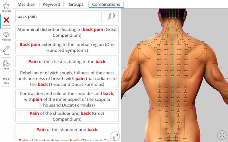 Visual Acupuncture 3D скриншот программы 3